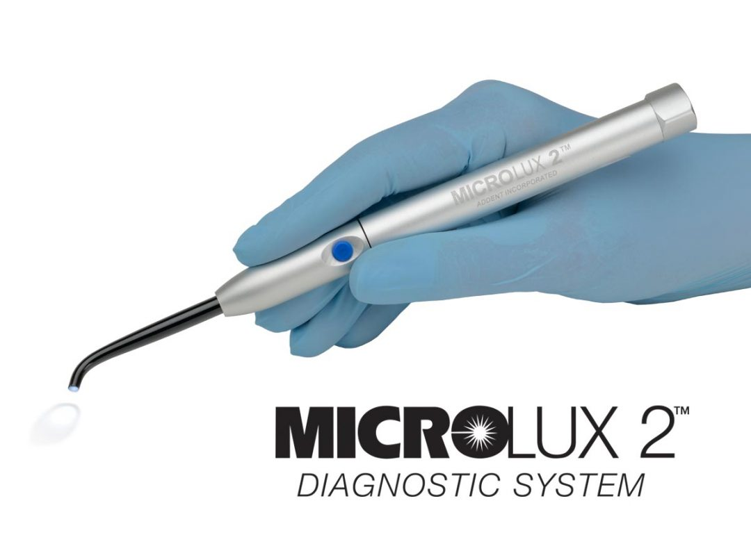 Microlux Homepage Feature